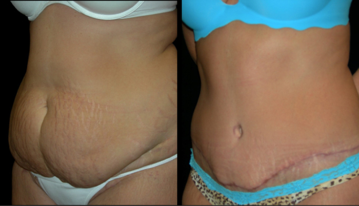 Atlanta Tummy Tuck Patient 26 Before & After