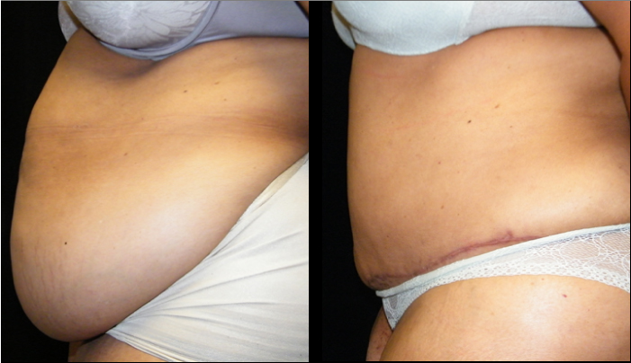 Atlanta Tummy Tuck Patient 27 Before & After