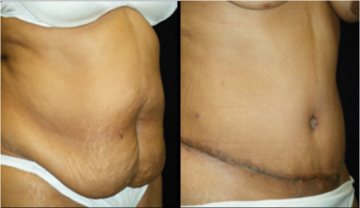 Atlanta Tummy Tuck Patient 29 Before & After