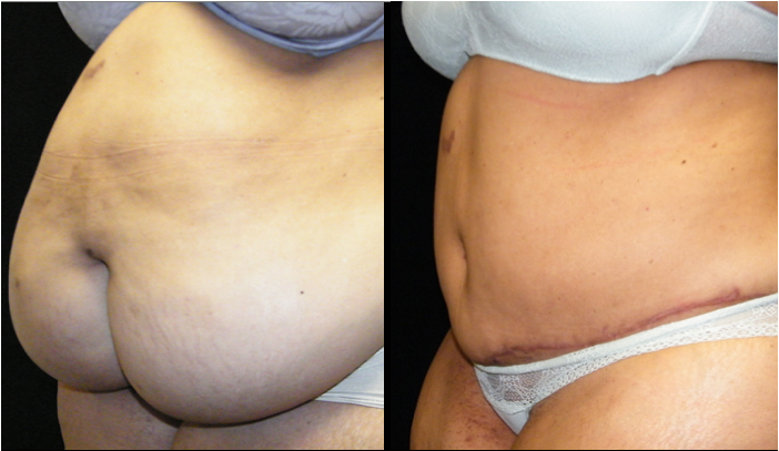 Atlanta Tummy Tuck Patient 31 Before & After