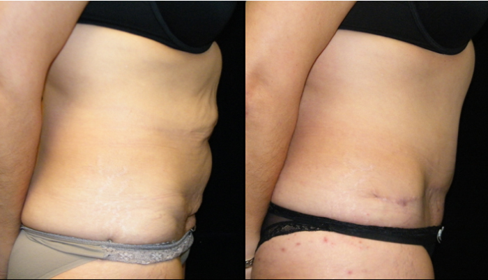 Atlanta Tummy Tuck Patient 32 Before & After