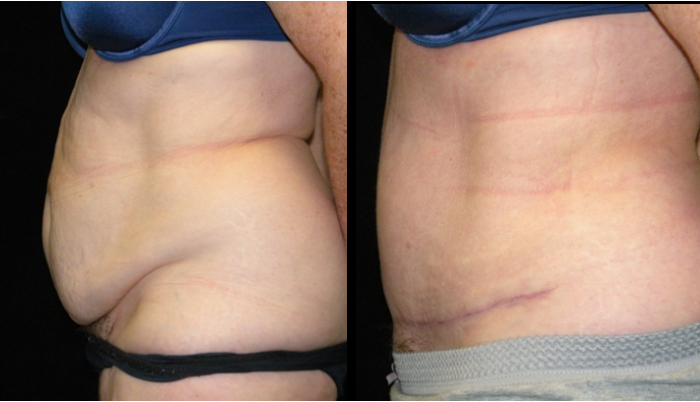 Atlanta Tummy Tuck Patient 33 Before & After