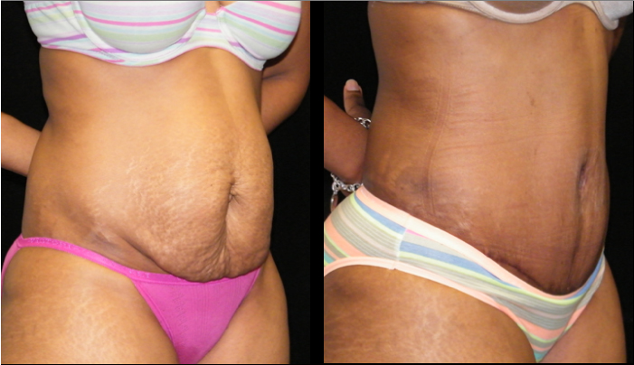 Atlanta Tummy Tuck Patient 34 Before & After
