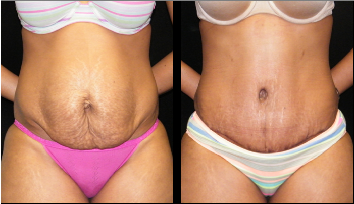 Atlanta Tummy Tuck Patient 37 Before & After