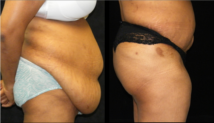 Atlanta Tummy Tuck Patient 38 Before & After