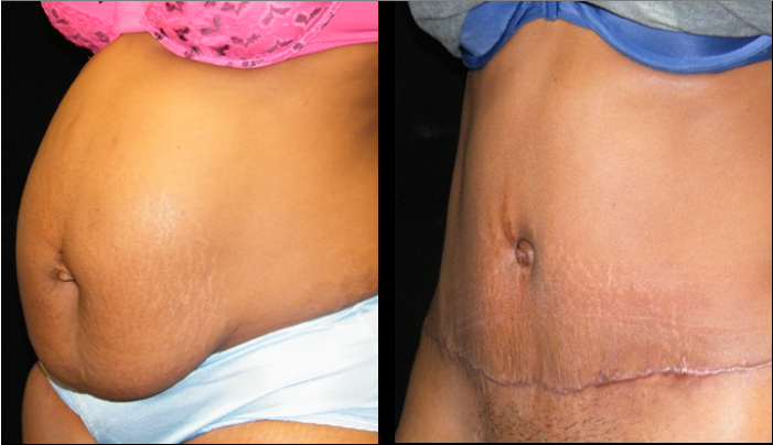 Atlanta Tummy Tuck Patient 39 Before & After