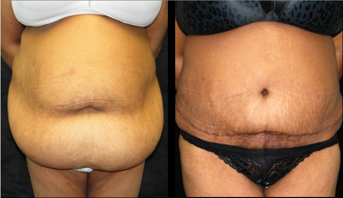Atlanta Tummy Tuck Patient 40 Before & After