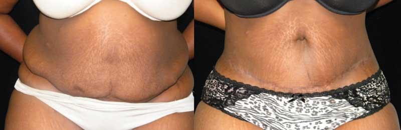 Atlanta Tummy Tuck Patient 56 Before & After