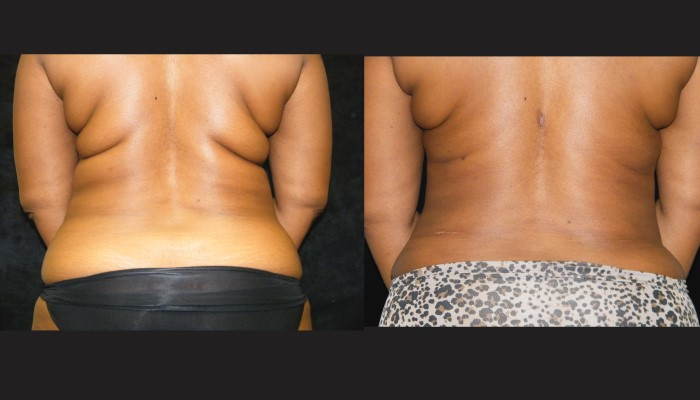 Atlanta Tummy Tuck Patient 49 Before & After