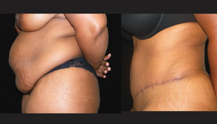 Atlanta Tummy Tuck Patient 52 Before & After