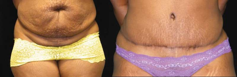 Atlanta Tummy Tuck Patient 53 Before & After