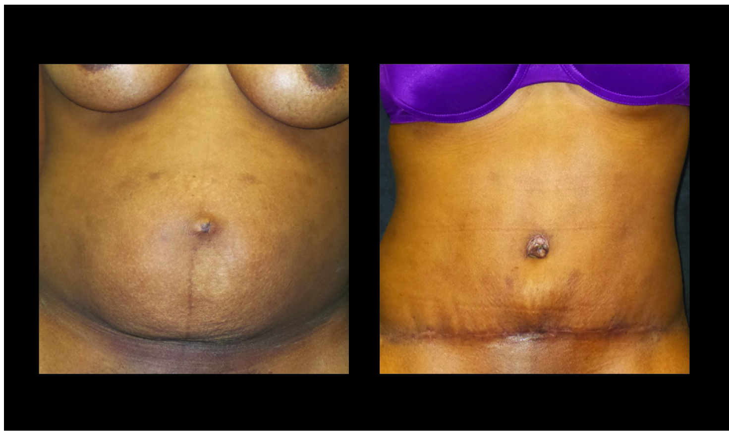 Atlanta Tummy Tuck Patient 72 Before & After