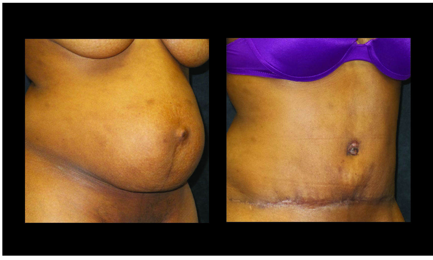 Atlanta Tummy Tuck Patient 73 Before & After