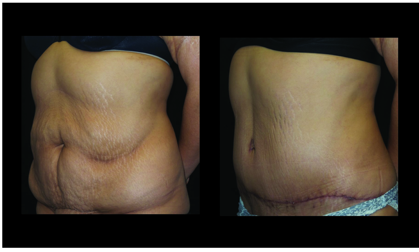 Atlanta Tummy Tuck Patient 69 Before & After