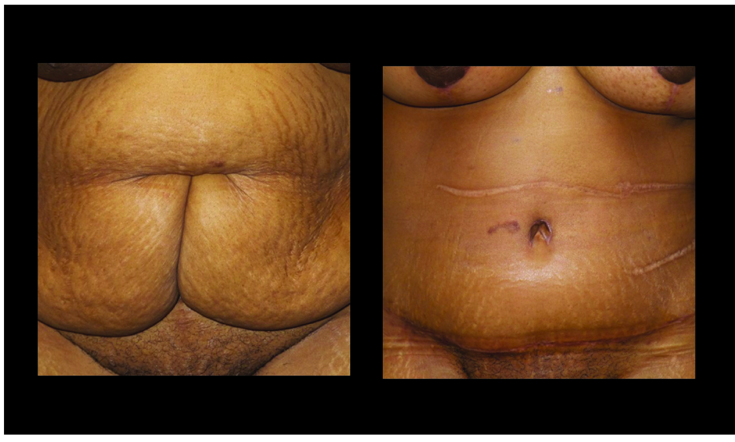 Atlanta Tummy Tuck Patient 68 Before & After