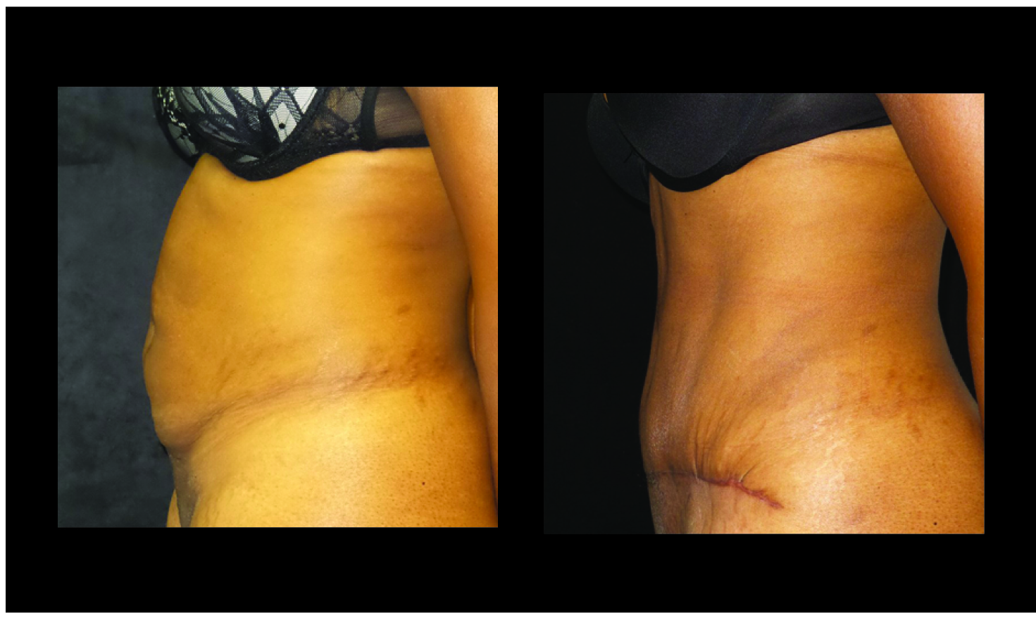 Atlanta Tummy Tuck Patient 65 Before & After