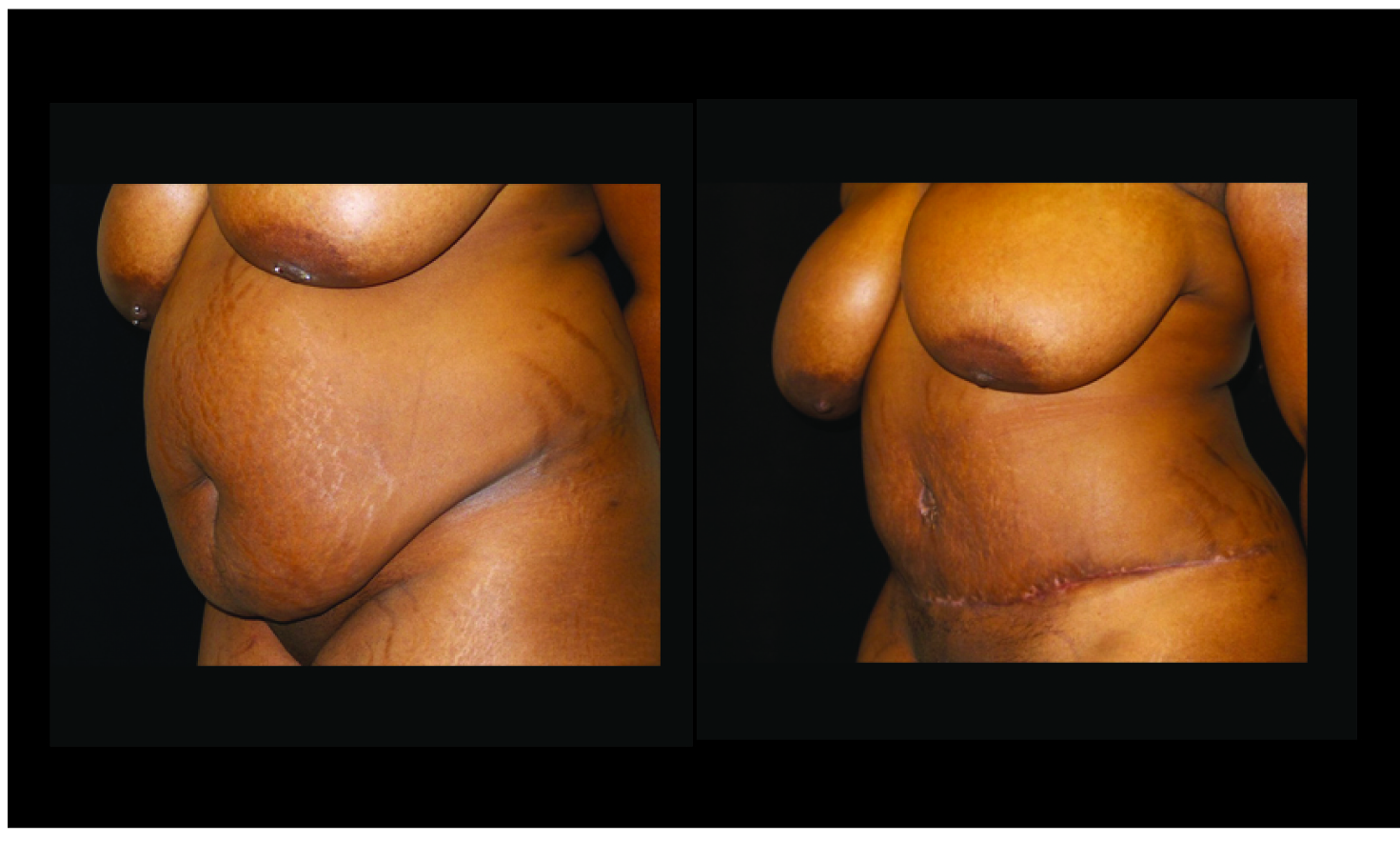 Atlanta Tummy Tuck Patient 76 Before & After