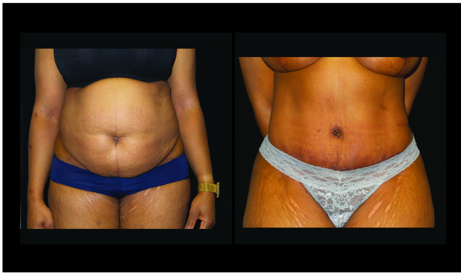 Atlanta Tummy Tuck Patient 74 Before & After
