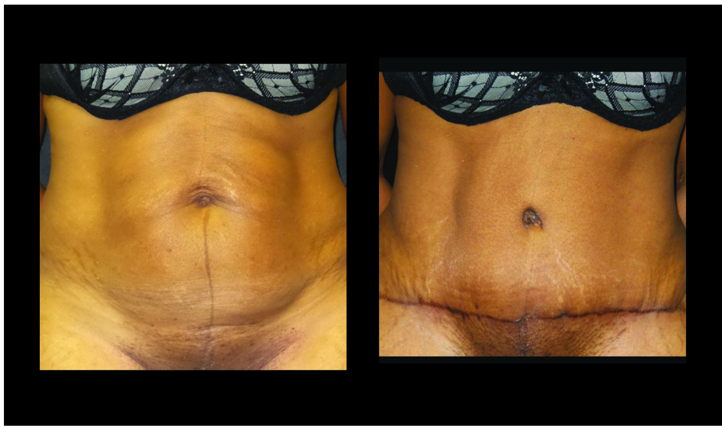 tummy tuck a cosmetic procedure A tummy tuck is a popular procedure to achieve a flat tummy with tightened skin get a tummy tuck from a leading nashville board-certified plastic surgeon.