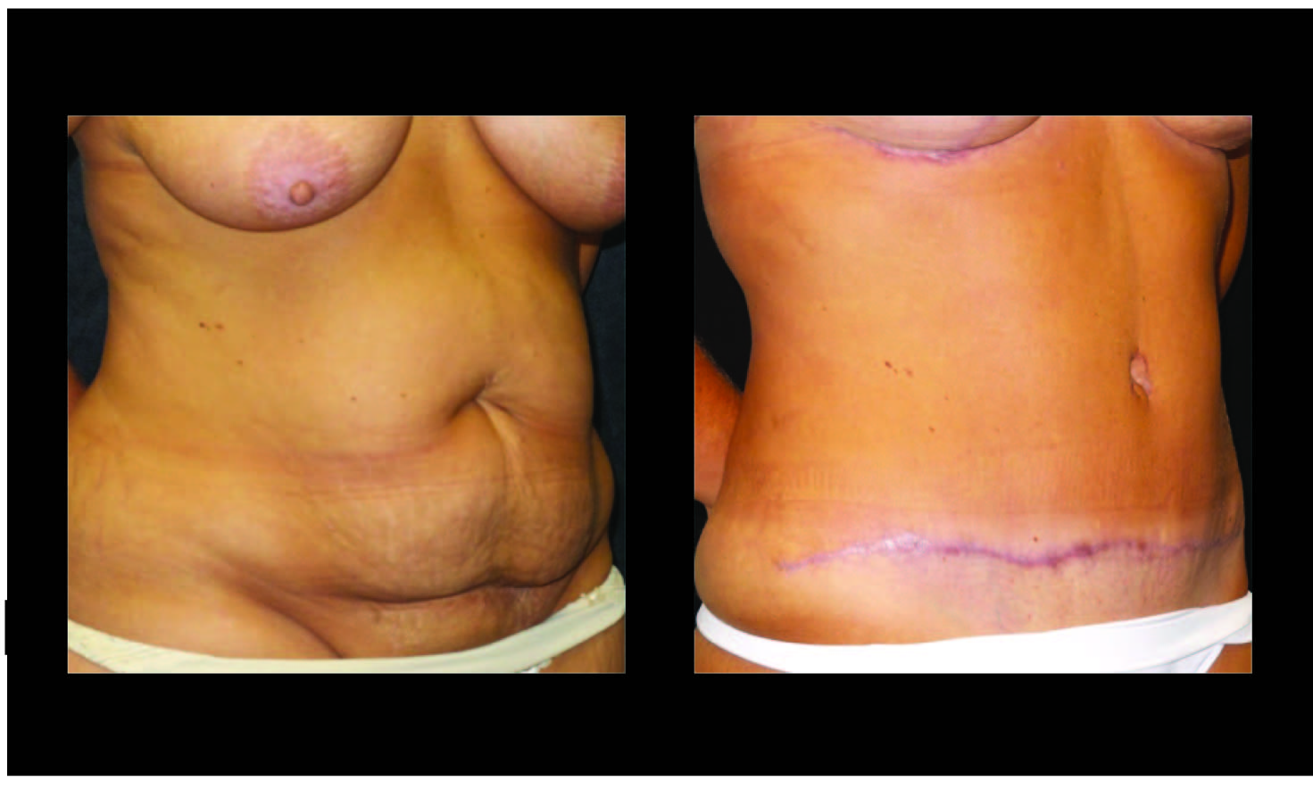 Atlanta Tummy Tuck Patient 60 Before & After