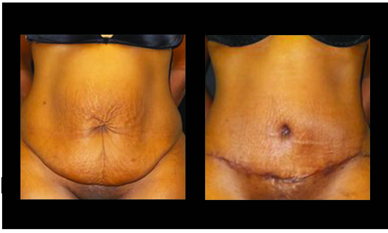 Atlanta Tummy Tuck Patient 61 Before & After