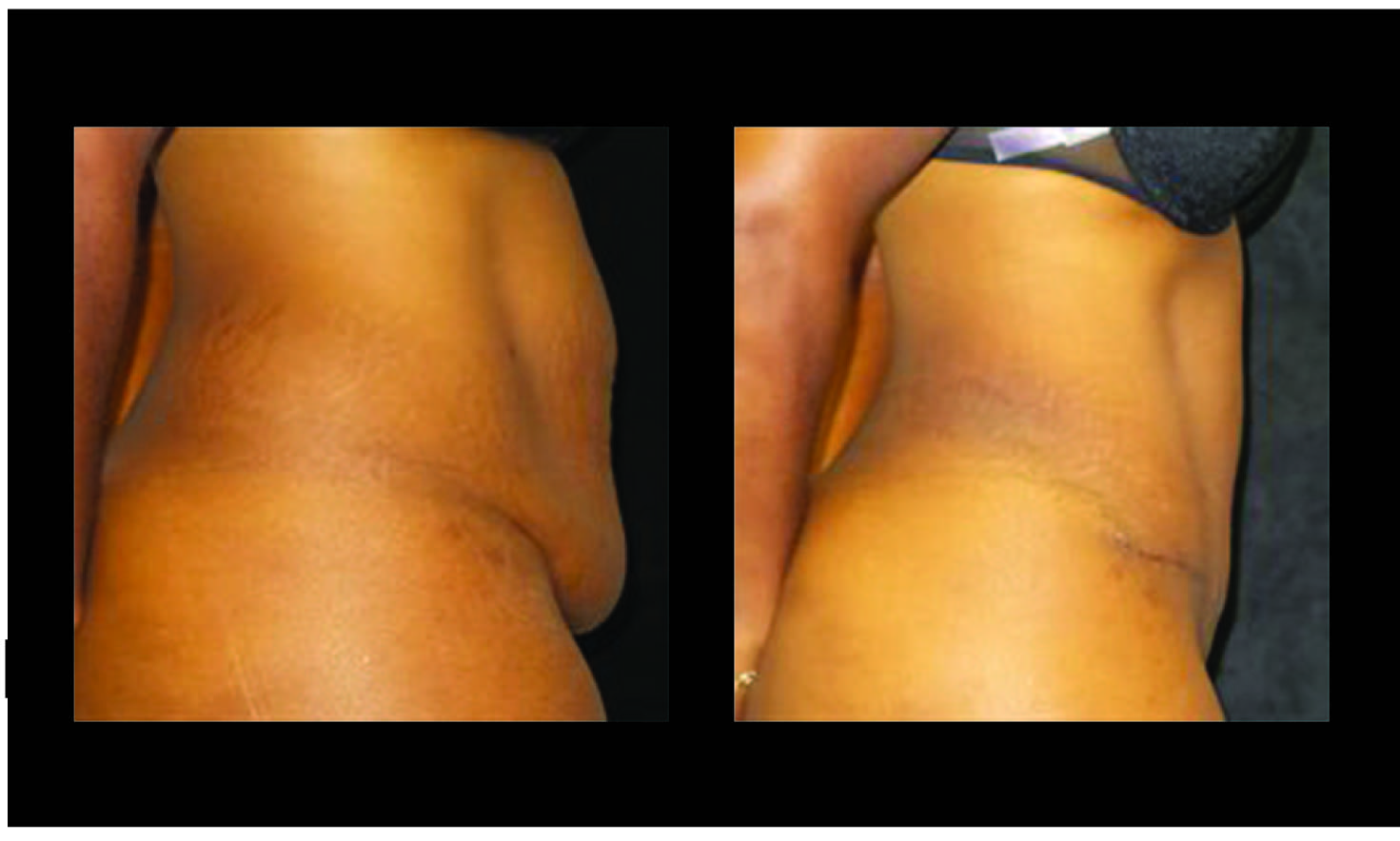 Atlanta Tummy Tuck Patient 62 Before & After