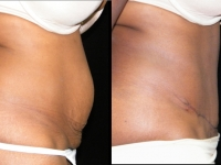 Atlanta Tummy Tuck Patient 28 Before & After
