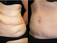Atlanta Tummy Tuck Patient 30 Before & After