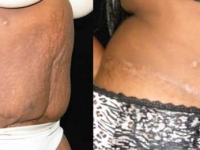 Atlanta Tummy Tuck Patient 55 Before & After