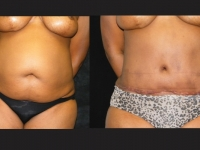 Atlanta Tummy Tuck Patient 51 Before & After