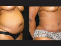 Atlanta Tummy Tuck Patient 50 Before & After