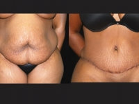 Atlanta Tummy Tuck Patient 48 Before & After