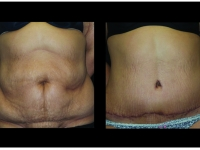 Atlanta Tummy Tuck Patient 70 Before & After