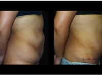 Atlanta Tummy Tuck Patient 71 Before & After