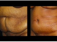 Atlanta Tummy Tuck Patient 67 Before & After