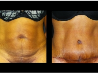 Atlanta Tummy Tuck Patient 66 Before & After