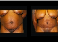 Atlanta Tummy Tuck Patient 77 Before & After