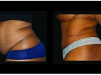 Atlanta Tummy Tuck Patient 75 Before & After