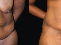 Atlanta Tummy Tuck Patient 57 Before & After