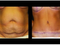 Atlanta Tummy Tuck Patient 58 Before & After