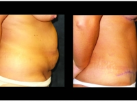 Atlanta Tummy Tuck Patient 59 Before & After
