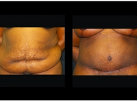 Atlanta Tummy Tuck Patient 81 Before & After