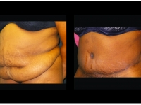 Atlanta Tummy Tuck Patient 80 Before & After