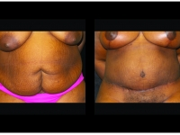 Atlanta Tummy Tuck Patient 79 Before & After