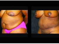Atlanta Tummy Tuck Patient 78 Before & After