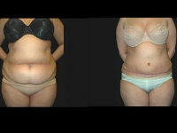Atlanta Tummy Tuck Patient 12 Before & After