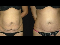 Atlanta Tummy Tuck Patient 13 Before & After