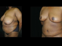Atlanta Tummy Tuck Patient 17 Before & After