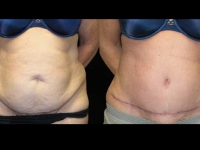 Atlanta Tummy Tuck Patient 21 Before & After