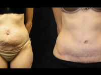 Atlanta Tummy Tuck Patient 23 Before & After